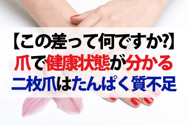 【この差って何ですか?】爪を見れば体の不調が分かる!爪の6つの症状を徹底解説