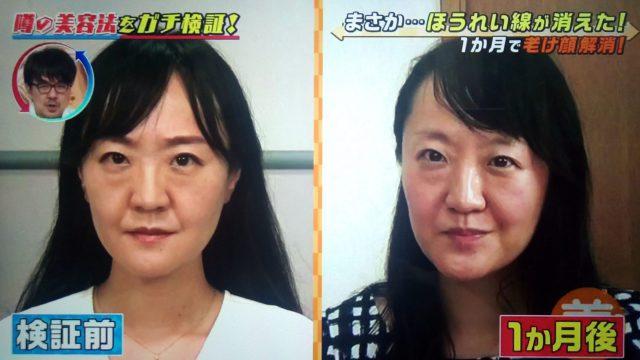 【この差って何ですか?】ほうれい線を消す美容法で老け顔が解消できるかガチ検証