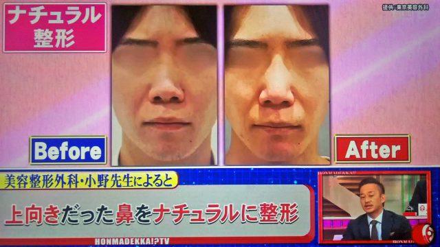 【ホンマでっかTV】令和の最新美容整形SP|薄毛治療・歯列矯正・プチ整形の新常識ベスト10