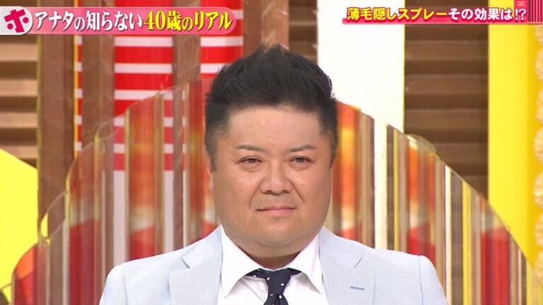 薄毛隠しスプレーCAX(カックス)を紹介【ホンマでっか】小杉の髪がフサフサに!